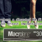 Macrolane a disputed HA filler for breast implantation