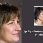 Right Way to Save Yourself from Hair Loss with Dr. CYJ Hair filler